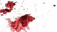 Kan Lekesi Koltuktan Nasıl Çıkar?